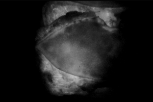 plasctic_surgery-1